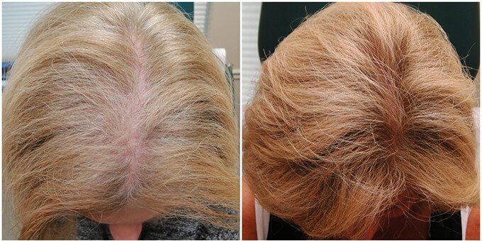 51-Year Old Female Hair Restoration Patient Before and After